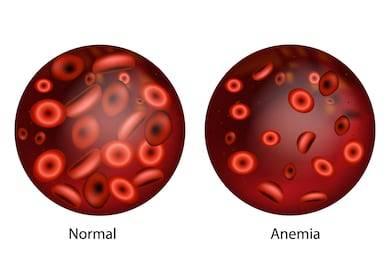 anemia cauze deficit