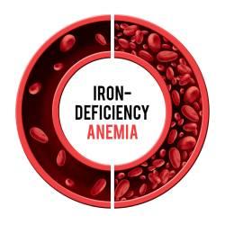 anemia simptome