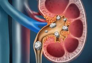 piatra la rinichi simptome