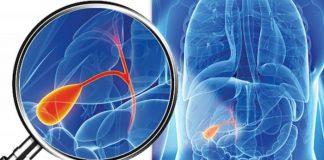 colica biliara