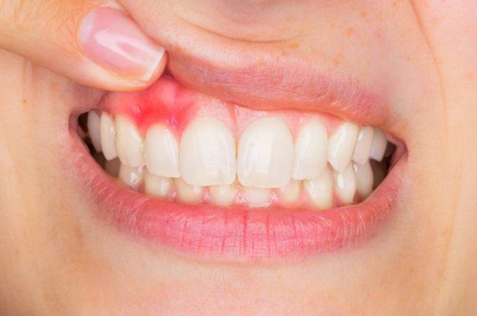 gingie inflamtata rosie