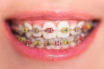 Aparat Dentar Colorat