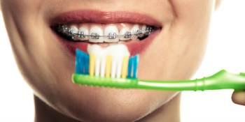 aparat-dentar-igiena