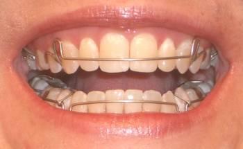 Aparat Dentar Mobile / Contentie