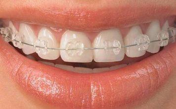 preturi aparate dentare