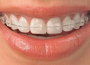 Aparate Dentare Ceramice