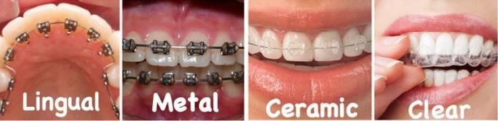 aparate dentare fixe