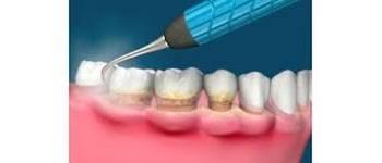 Detatraj Dentar