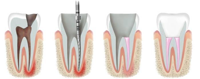 endodontie medicina