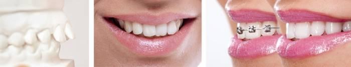 ortodontie mulaj aparat dentar