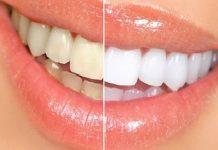 tartru-dentar